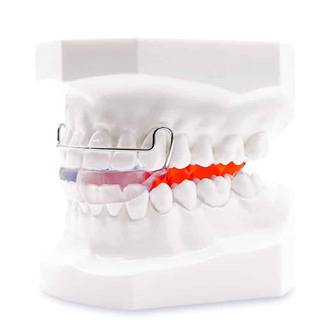 Smile Bionator orthodontic appliance