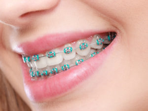 Closeup of braces in New Hampshire