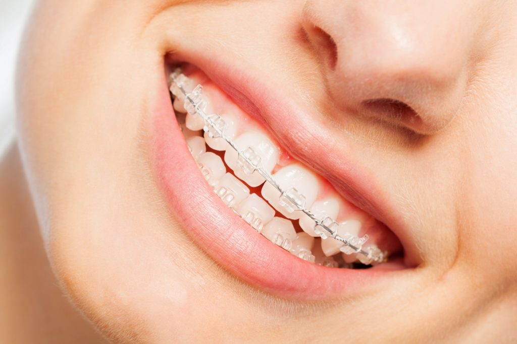 Closeup of patient smiling with braces