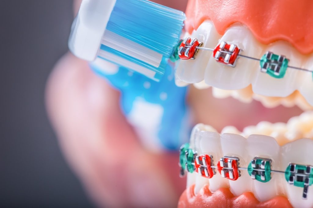 Closeup of toothbrush cleaning colored metal braces